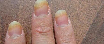 грибок ногтей на руках лечение
