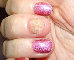 грибок ногтей на руках симптомы