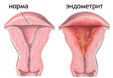 коричневые выделения у женщин причины