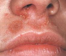 стафилококк в носу фото