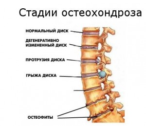 шейный остеохондроз стадии