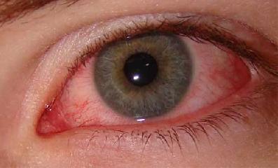 Аллергический конъюнктивит симптомы