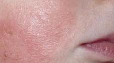 Атопический дерматит признаки