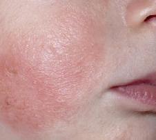 Атопический дерматит фото