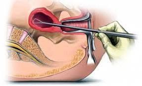 Биопсия шейка матки 1