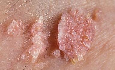 рак кожи после эпиляции