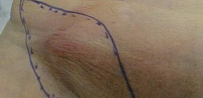Воспаление лимфоузлов в паху фото