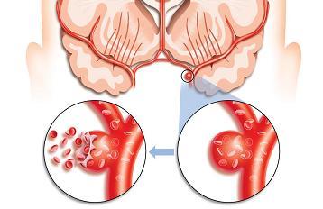 Геморрагический инсульт фото