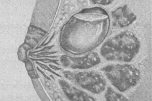 Киста молочной железы лечение