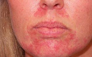 Контактный дерматит лечение