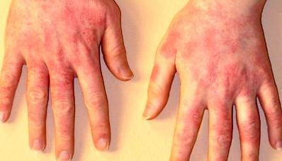 Аллергический контактный дерматит симптомы
