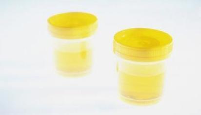 Повышенные эритроциты в моче