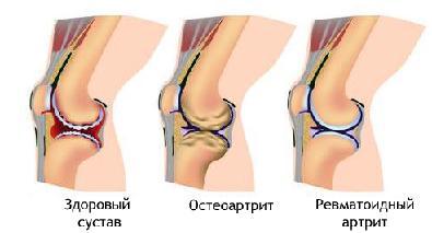 Ревматоидный артрит признаки