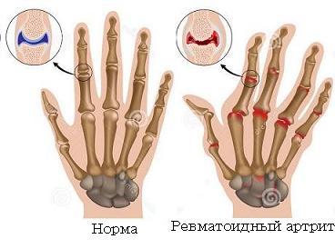 Ревматоидный артрит дифф диагноз в таблицах