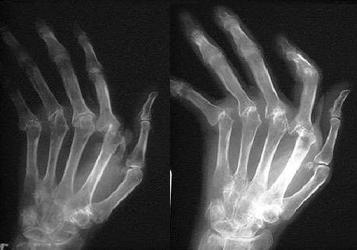 Ревматоидный артрит рентген