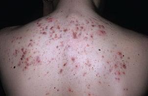 Угри на спине лечение
