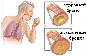 Хронический бронхит лечение