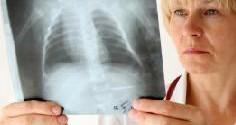 Хронический бронхит у взрослых: симптомы и схема лечения