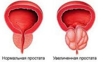 Как лечить золотистый стафилококк и фурункулез обзор