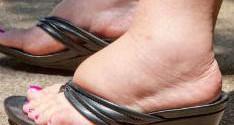 причины отеков на ногах