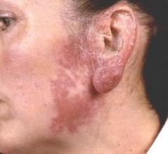 туберкулез кожи фото