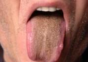 Коричневый налет на языке