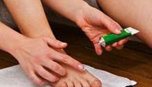Мази против грибка ногтей
