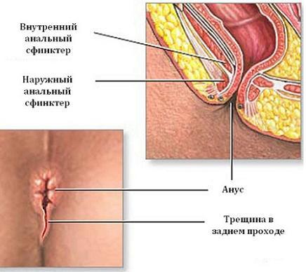 Чем лечить трещину прямой кишки