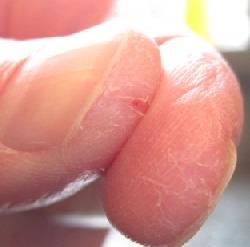 уход за пальцами рук и ногтями