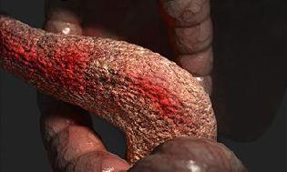 воспаление поджелудочной железы симптомы