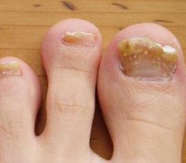 Грибок ногтей лечебный лак для