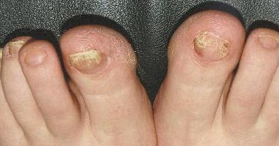грибок ногтей запущенная форма