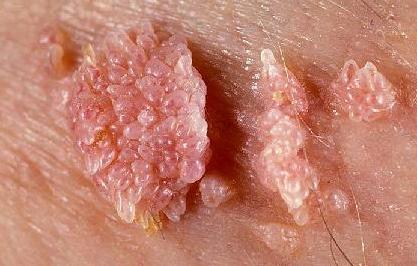 кондиломы у женщин симптомы