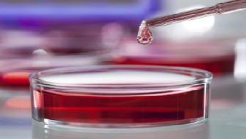 Активированное частичное тромбопластиновое время