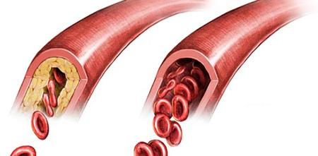 Атеросклероз лечение