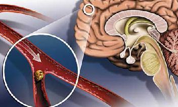 Атеросклероз причины