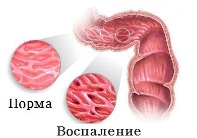 Болезнь Крона симптомы