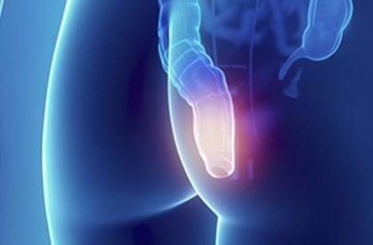Тупая боль в заднем проходе у женщин