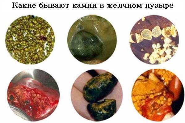 Камни в желчном пузыре симптомы