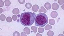 Повышенные моноциты в крови