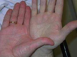 Пониженный гемоглобин симптомы