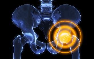 боль в тазобедренном суставе симптомы
