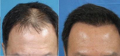 выпадение волос у мужчин причины