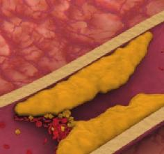 Повышенный холестерин: о чем это говорит, и что надо делать?