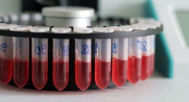 общий анализ крови расшифровка