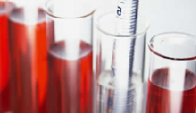 Почему в крови базофилы повышены, о чем это говорит?