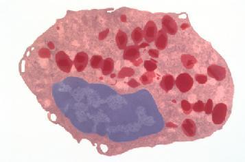 Моноциты повышены это что лейкоз
