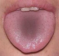 серый налет на языке