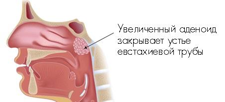 Аденоиды у взрослых лечение