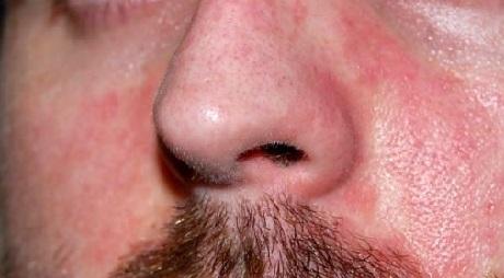 аллергия на алкоголь симптомы у взрослых фото